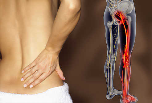 Mattresses that Relieve the Symptoms of Sciatica